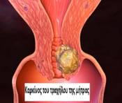 Καρκίνος τραχήλου της μήτρας