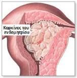 Καρκίνος ενδομητρίου