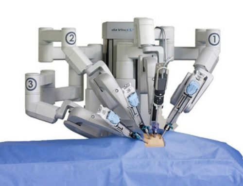Ρομποτική Χειρουργική. Η νέα τεχνολογία που «Απογειώνει» τις θεραπευτικές δυνατότητες ενάντια στον καρκίνο του παχέος εντέρου.